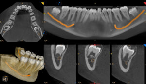 may-chup-x-quang-cs9600-chi-dinh-cay-ghep-implant